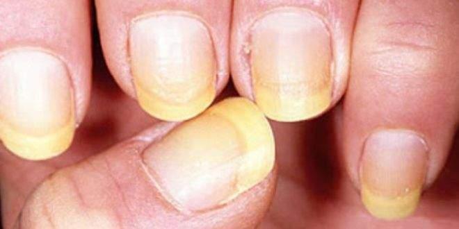 Dureri articulare datorate ciupercii unghiilor, Navigare articole