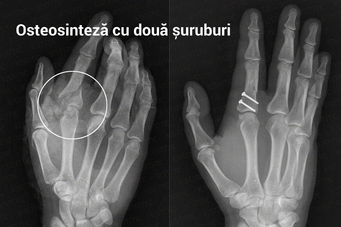 dureri articulare după o mică fractură de deget