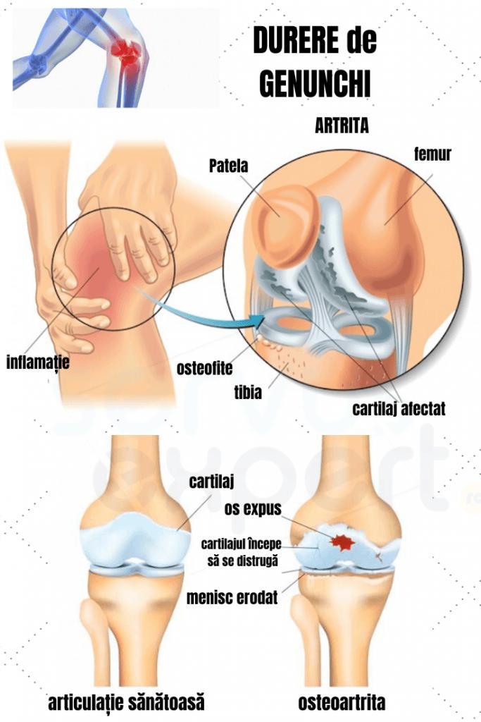 dureri la nivelul genunchiului decât la tratare