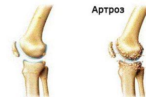 Tratamentul articulațiilor genunchiului Preț