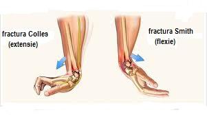 articulația doare după fractură mijloace pentru refacerea cartilajului coloanei vertebrale