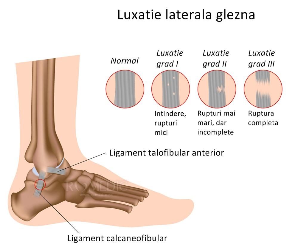 dislocarea timpului de recuperare a articulației gleznei pastile pentru articulațiile genunchiului Preț