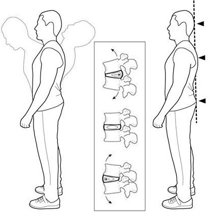 tratamentul bolilor coloanei vertebrale și articulațiilor din Podolsk