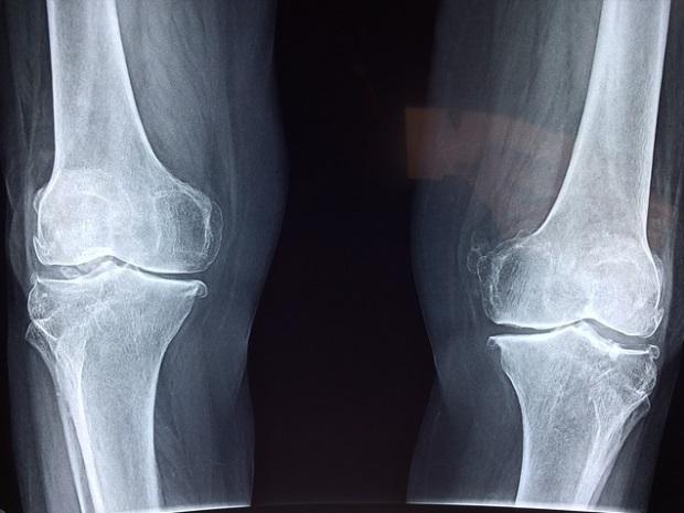 dureri de genunchi și căderea părului deteriorarea umărului articulației radiale