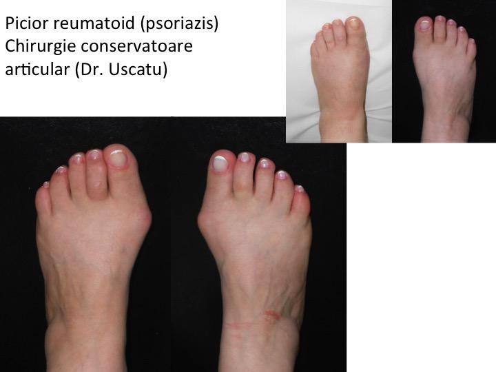 artrita picioare simptome