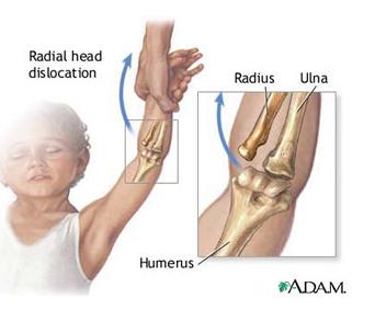 coatele rănesc articulațiile cotului provoacă amortirea brațului