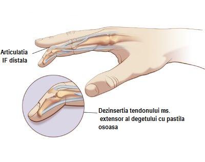 tratament articular interfalangian