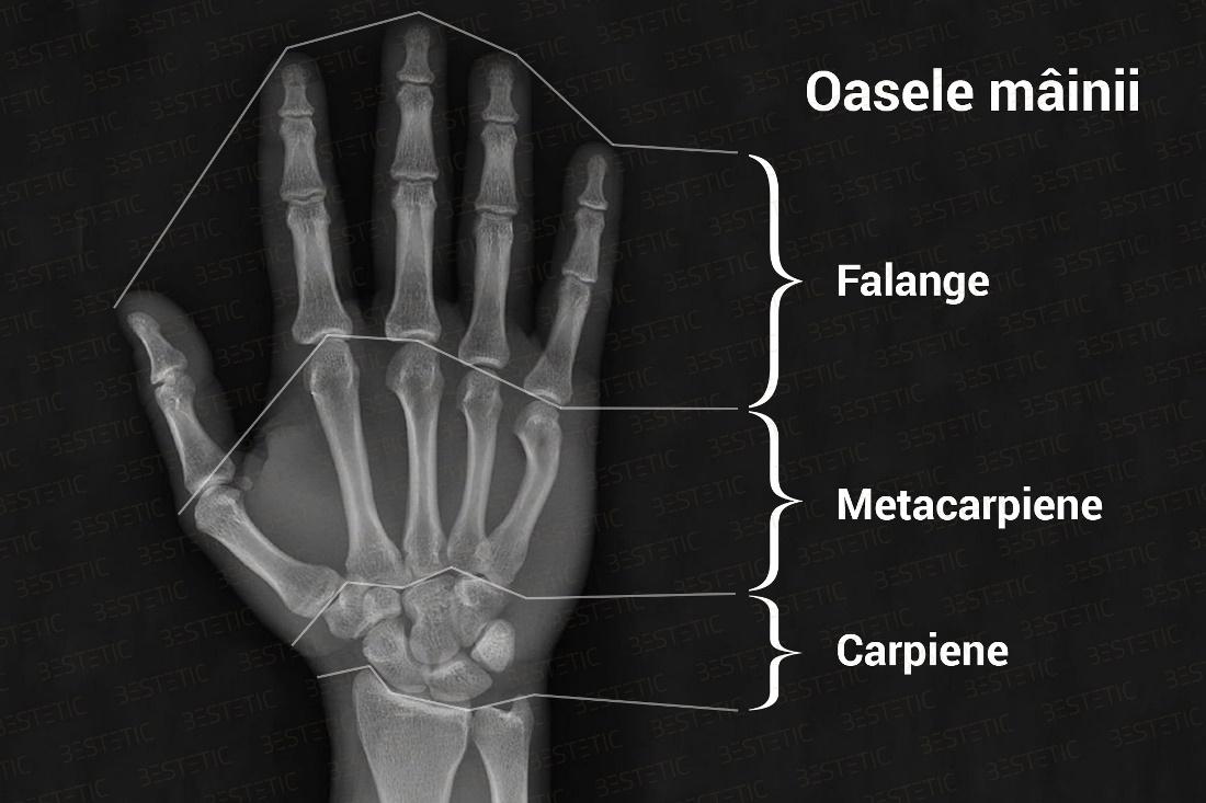Osteomielita