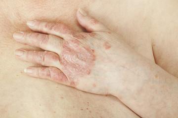 frecvența leziunilor articulare în artrita psoriazică