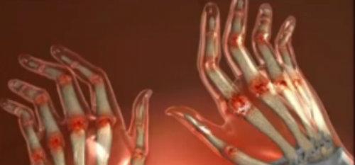 inflamația articulațiilor de pe mână în mână