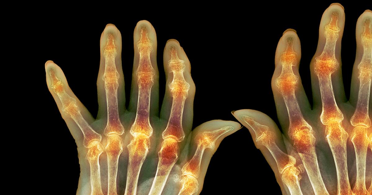 Umflarea articulației genunchiului la mieii, cu raze x - Inflamația articulară la un miel