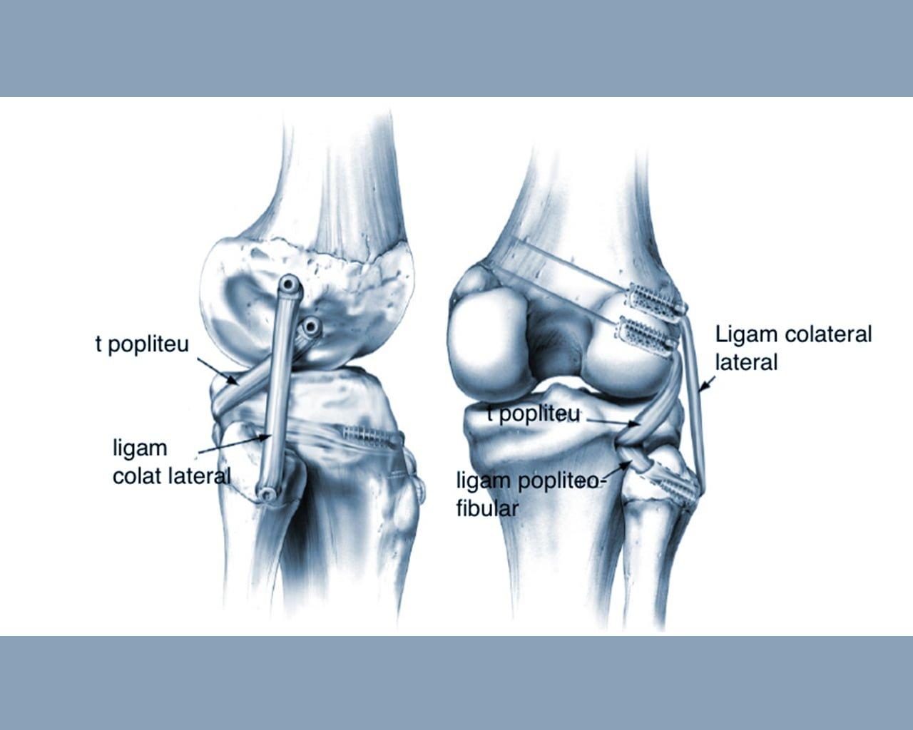 Ligamentita tratamentului articulației genunchiului
