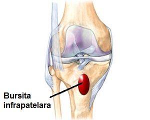medicamente bursita genunchiului