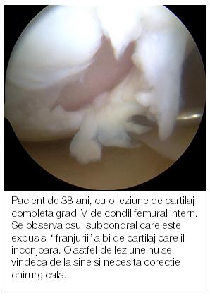 medicamente pentru refacerea cartilajului articulației genunchiului cu atât tratează mai bine artroza
