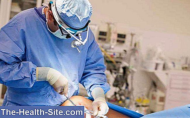meniscus vătămare lacrimă menisc medicamente glucozamină cu condroitină Preț