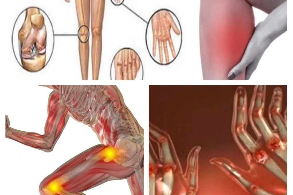 Articulațiile doare cu anemie?