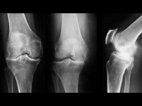 nou în tratamentul gonartrozei genunchiului