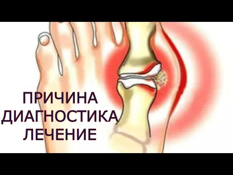 osteoartroza deformantă a tratamentului articulației gleznei gradul 2