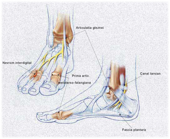 Dureri ale gleznei si piciorului | Cauze, simptome si tratamente – Voltaren