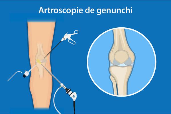 reconstituirea cartilajelor genunchi