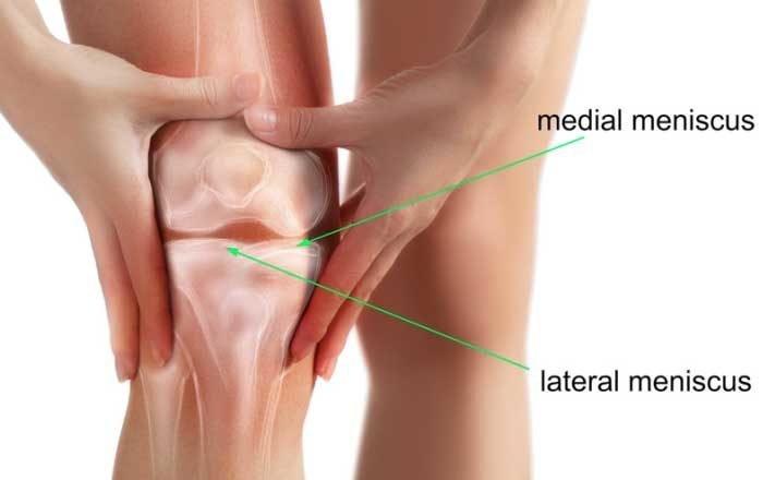 ruperea parțială a meniscului tratamentului articulației genunchiului