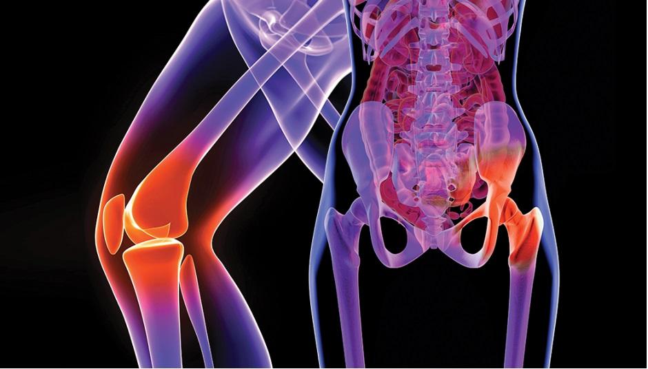 dureri ascuțite în articulațiile genunchiului provoacă Tratament cu artroza AINS