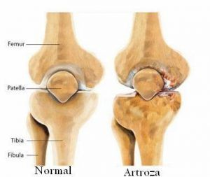 unguente vasodilatatoare pentru osteochondroza coloanei vertebrale după cum se evidențiază prin dureri articulare