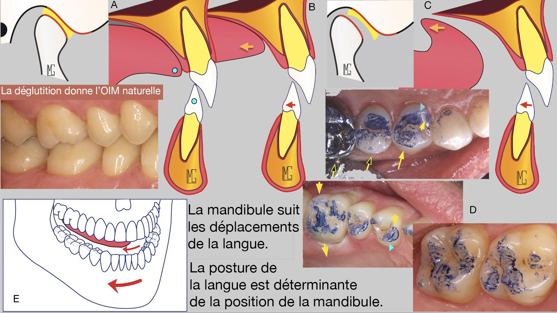 tratați articulația falangei degetului