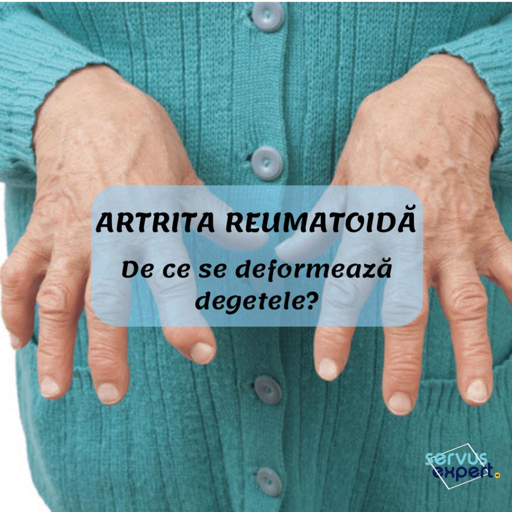 tratați eficient artrita reumatoidă ce poate fi bătut de durerea articulară