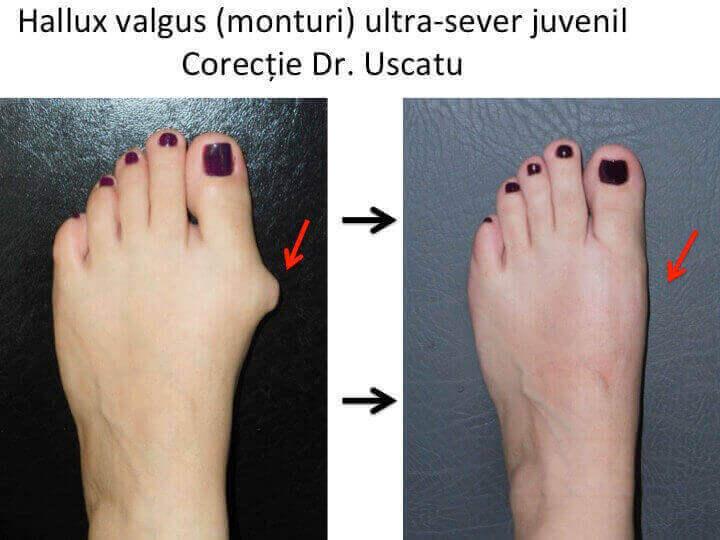tratamentul articulației piciorului hallux valgus
