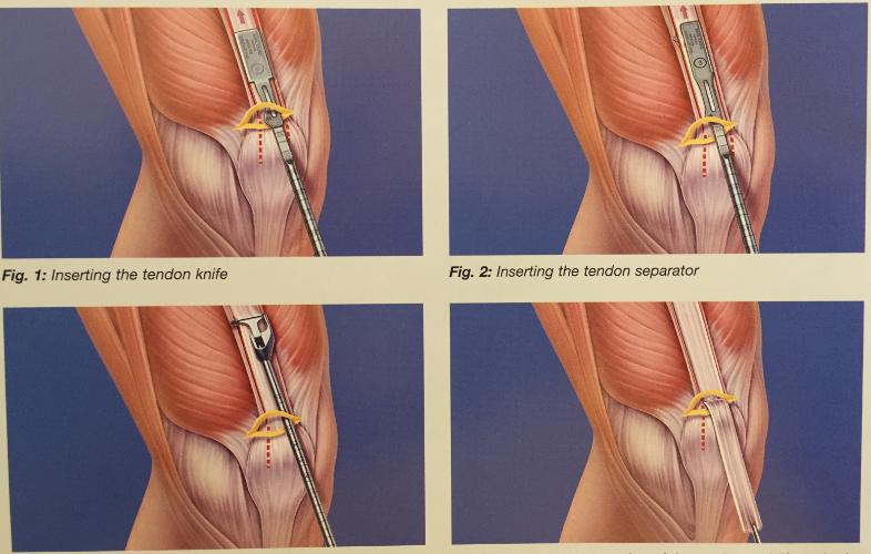 tratamentul articulațiilor ligamentului tendonului