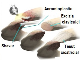 tratamentul artrozei acromioclaviculare depresie și dureri articulare