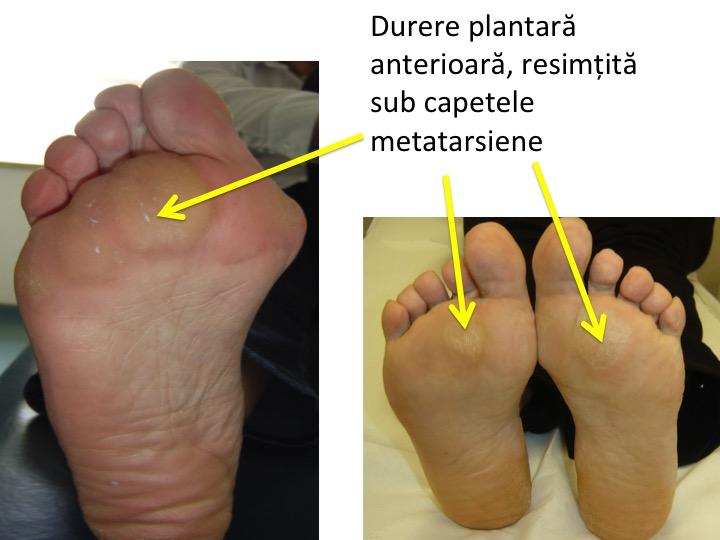 tratamentul bolii articulare a piciorului