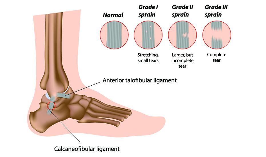 tratamentul chirurgical al artrozei gleznei este posibilă vindecarea artrozei deformante a articulațiilor genunchiului