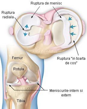 tratarea meniscului genunchiului