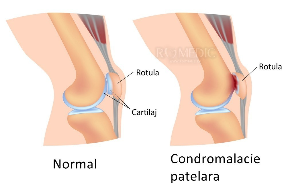 tratăm vasele articulației genunchiului tratamentul medicamentos al artritei și artrozei
