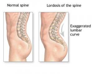 Boli luule viilma ale coloanei vertebrale și articulațiilor, Mult mai mult decât documente.