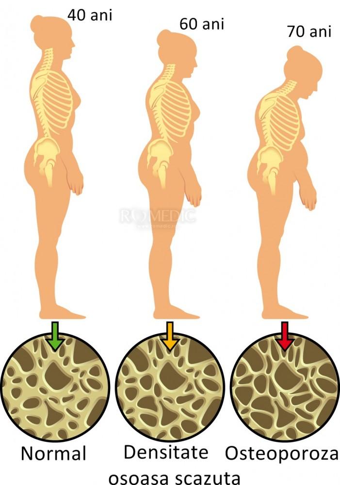 dureri osoase și articulare cu osteoporoză