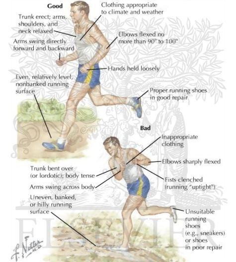 Durerile de genunchi și alergarea. Ce să faci când te dor genunchii