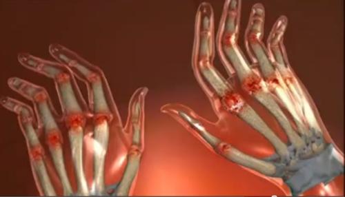 cum să tratezi artrita reumatoidă a oaselor
