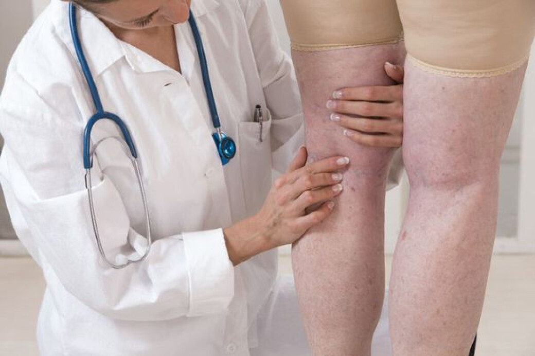 tratarea leziunilor cotului boala articulară a degetelor numită