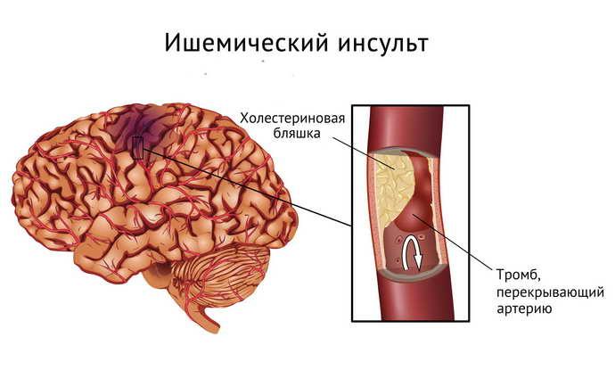 Tratarea afecțiunilor cardio-vasculare prin fizioterapie