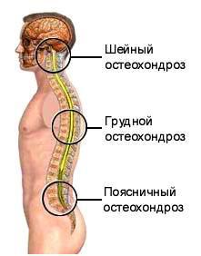 Cum se trateaza osteocondroza?