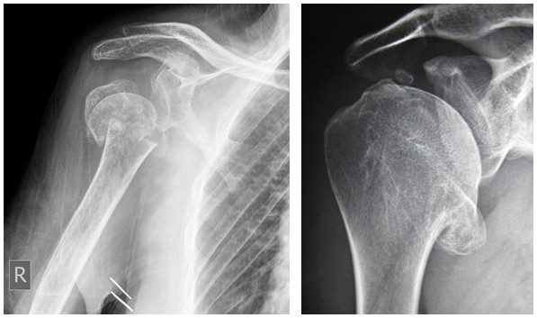 artroza umar imagini