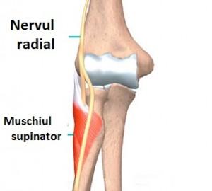 Cauzele, simptomele și tratamentul nervului ciupit în articulația cotului
