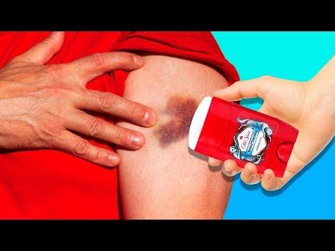 tratamentul artrozei deformante a articulației umărului 2 grade dacă toate articulațiile și coloana vertebrală doare