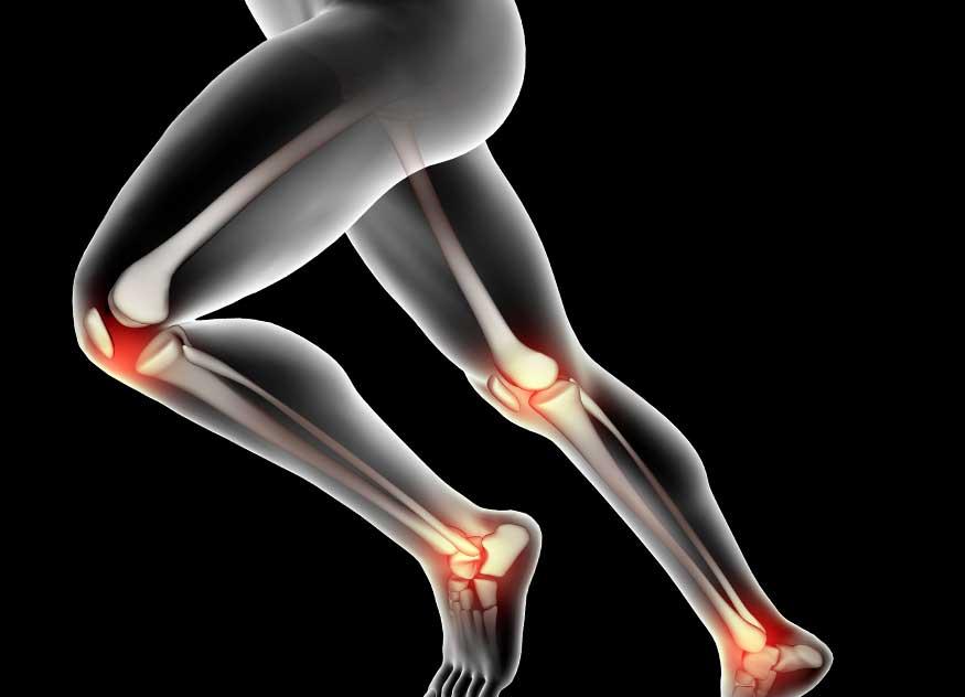 Articulațiile pot răni pe nervi