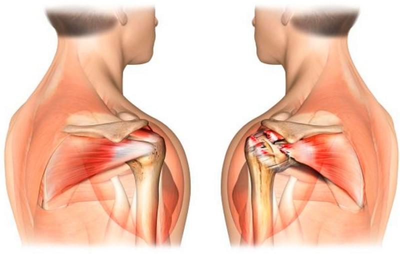 pierdere în greutate durerea lamei umărului