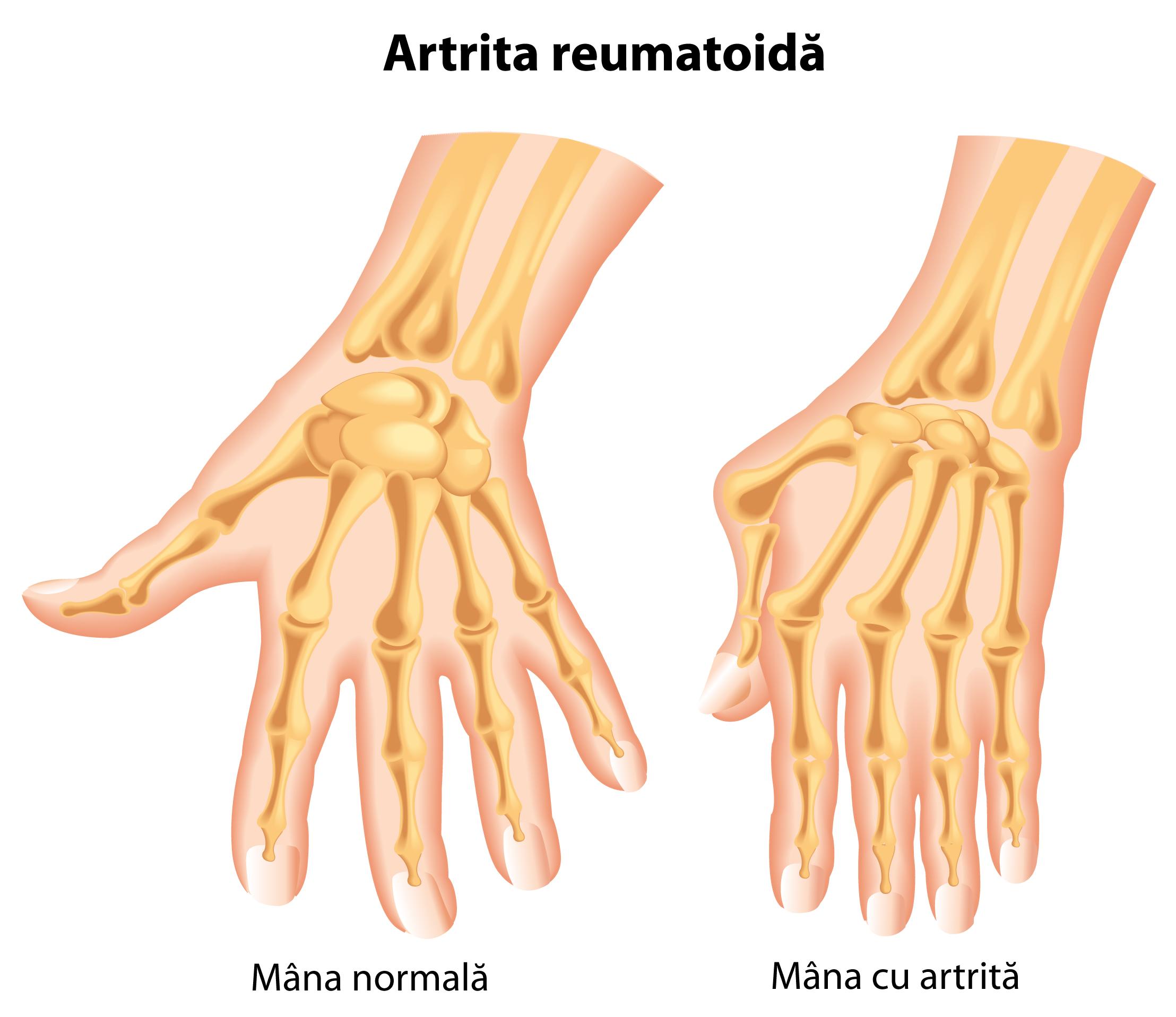 ce este similar cu artrita degetelor