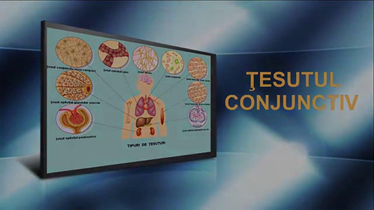 displazie de țesut conjunctiv la tratamentul adulților
